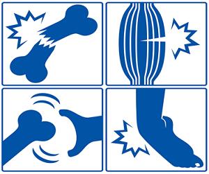 鳴門市鳴門坂口鍼灸整骨院:捻挫・挫傷・肉離れ・打撲の図